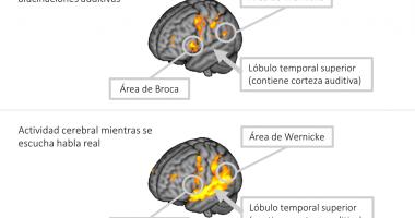 Es troben les àrees cerebrals implicades en les al·lucinacions  auditives dels pacients amb esquizofrènia